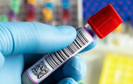 Thermo Fisher, WuXi and Mayo Clinic collaborate in developing COVID-19 antibody test